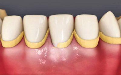Tártaro Dentário. Sabe o que é?