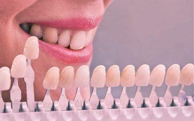 A Tonalidade dos Dentes